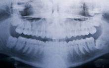 Diplomado en Ortodoncia y Ortopedia